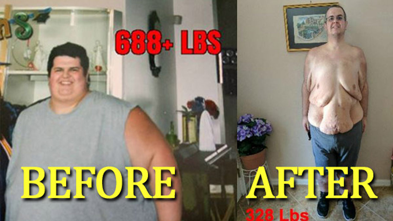 weight-loss-story_263164