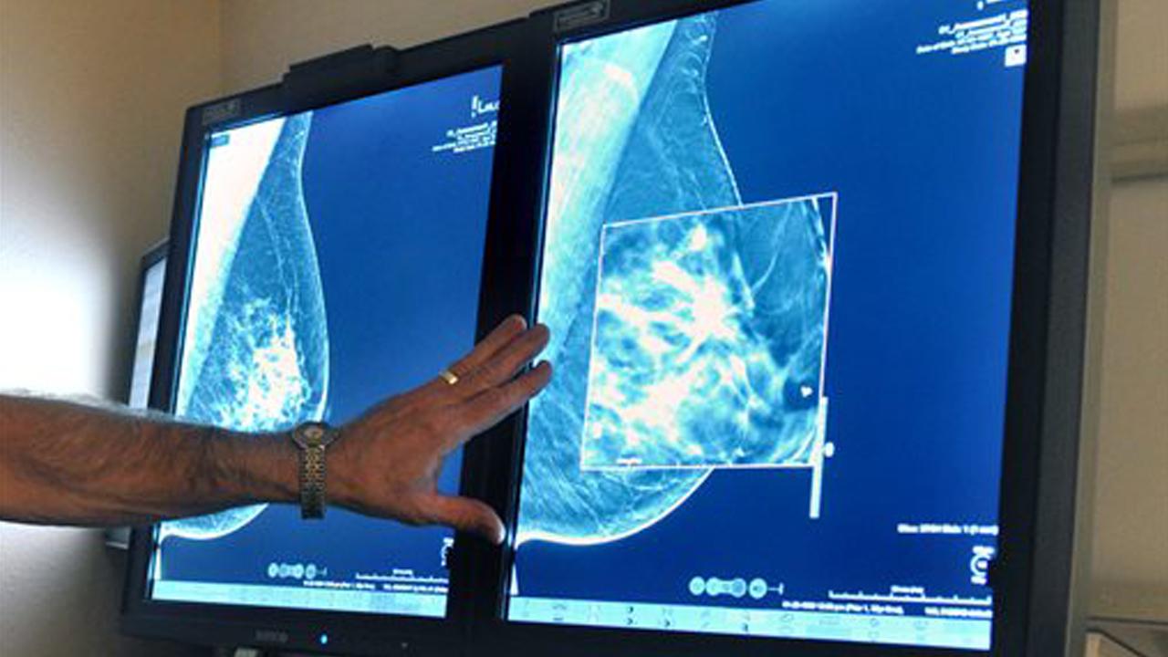 breastcancer_360292