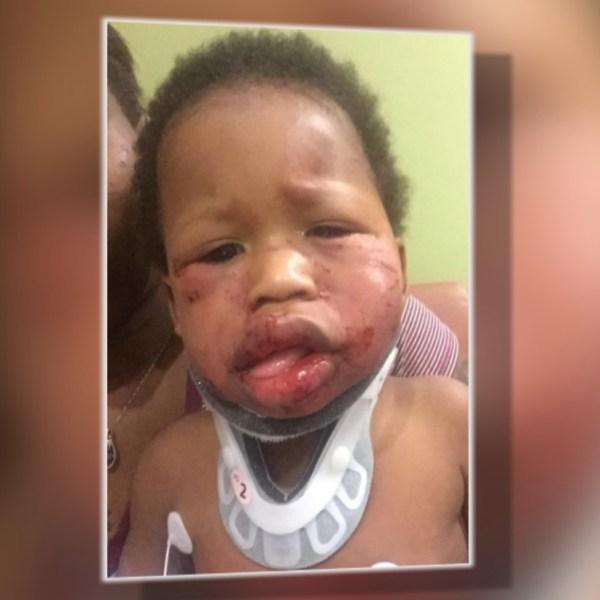 Boy injured_1525204657838.jpg-873774424.jpg