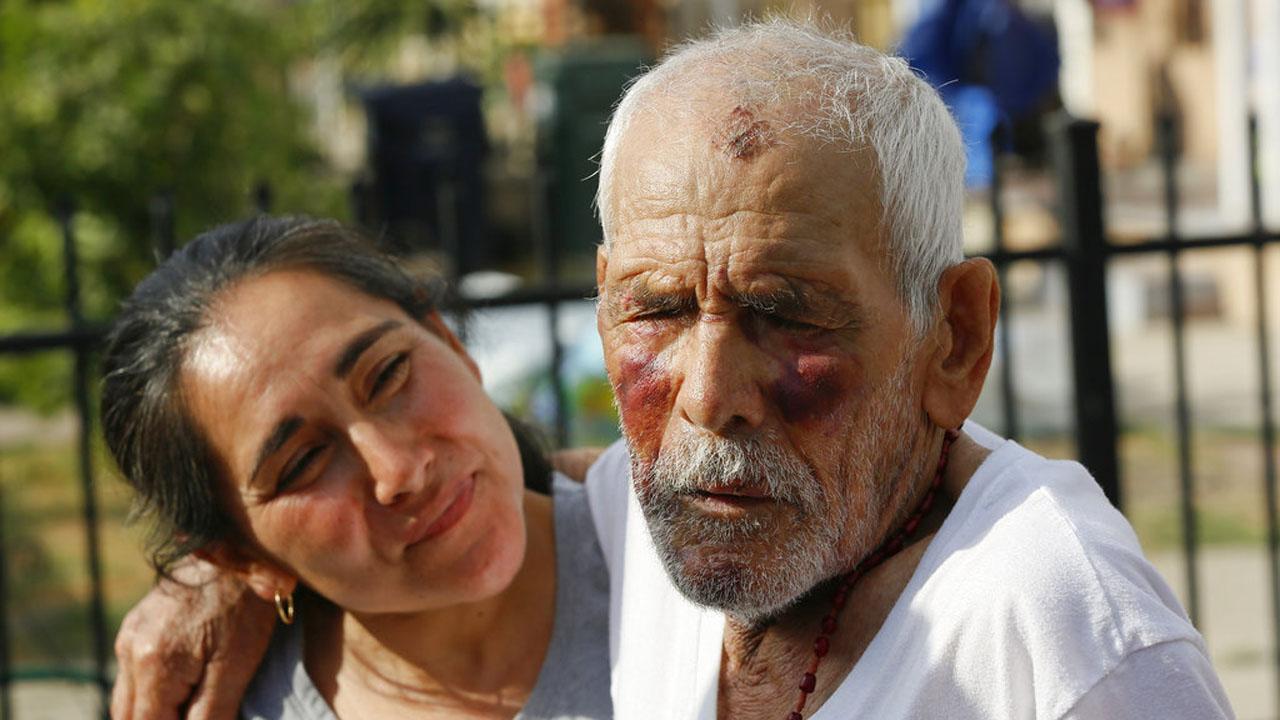 Elderly Man Beaten_1531428913316