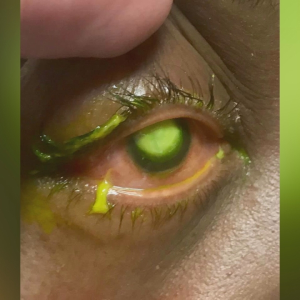 eye doctor warns against sleeping in contacts-846653543-846653543